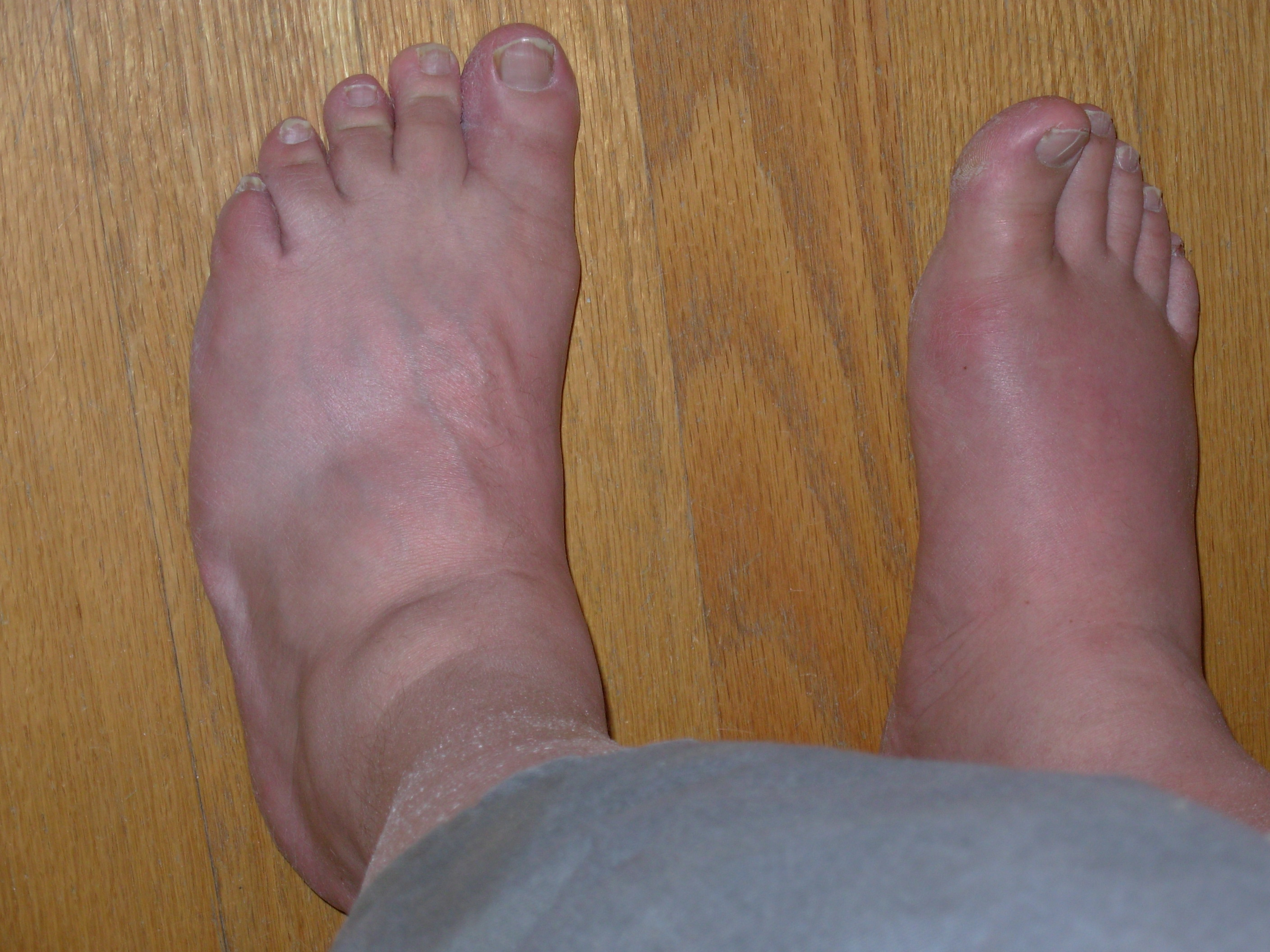 pictures of gout in feet #11