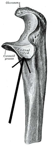Radial notch - Wikipedia, the free encyclopedia