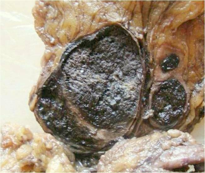 Melanoma lymph node, metastasis