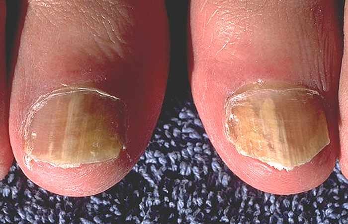 Fungus on Nail (Onychomycosis) Onychomycosis_due_to_Trychophyton_rubrum%2C_right_and_left_great_toe_PHIL_579_lores