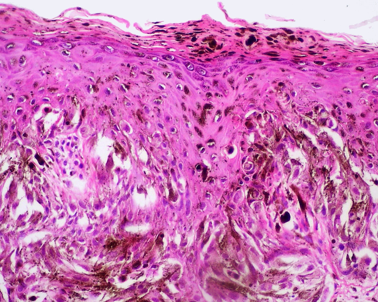 Ferret Skin Tumors,Cysts,Lumps & Abscesses