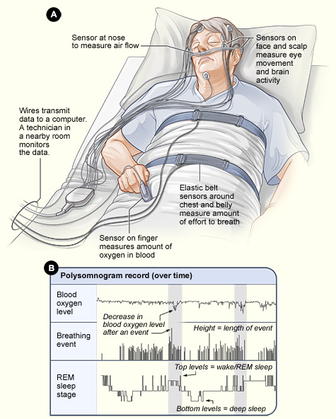 Man in hospital bed undergoing a sleep study (illustration).