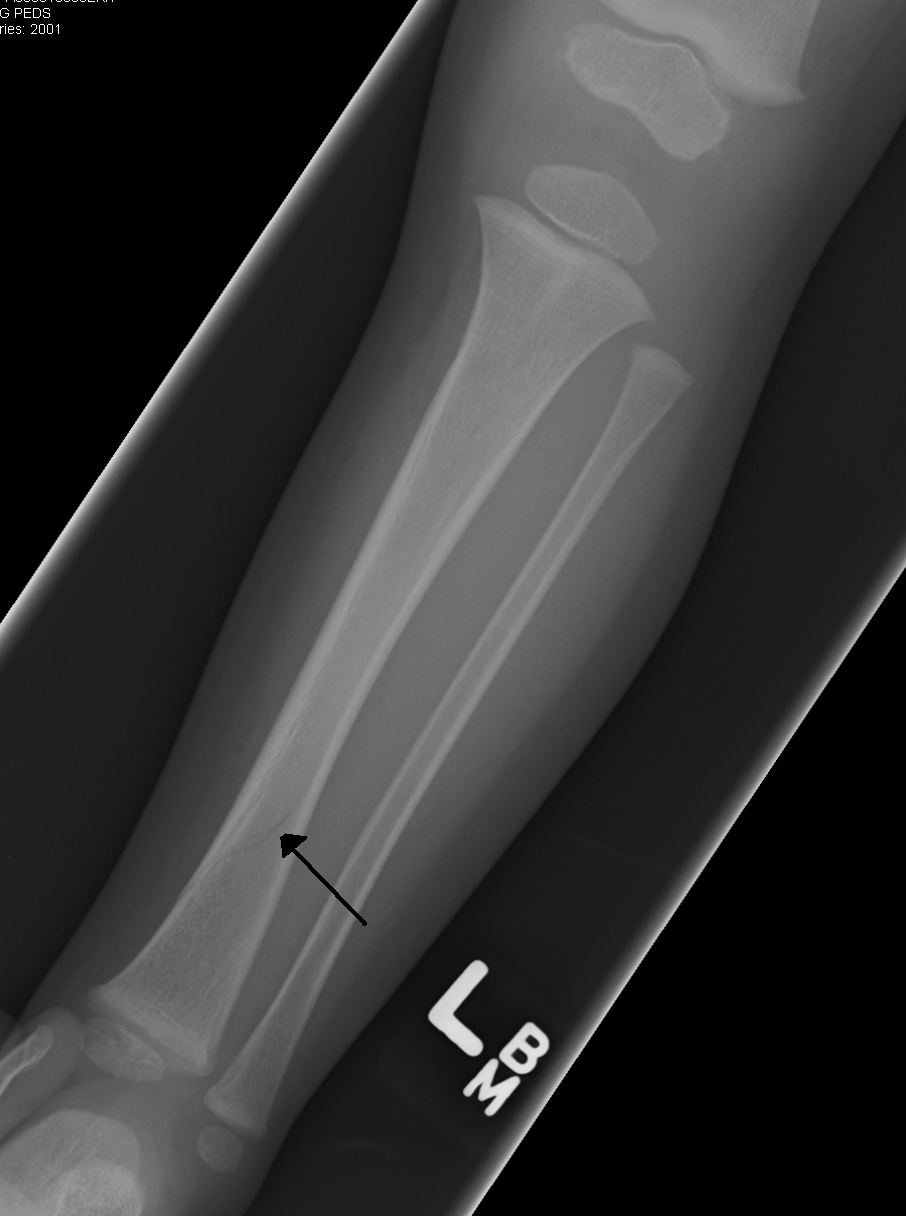 Toddler S Fracture Wikipedia