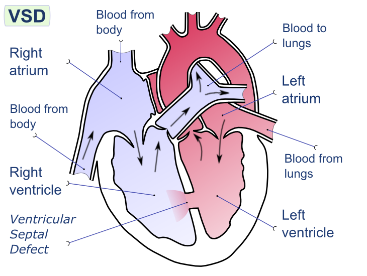 que son los tabiques cardiacos