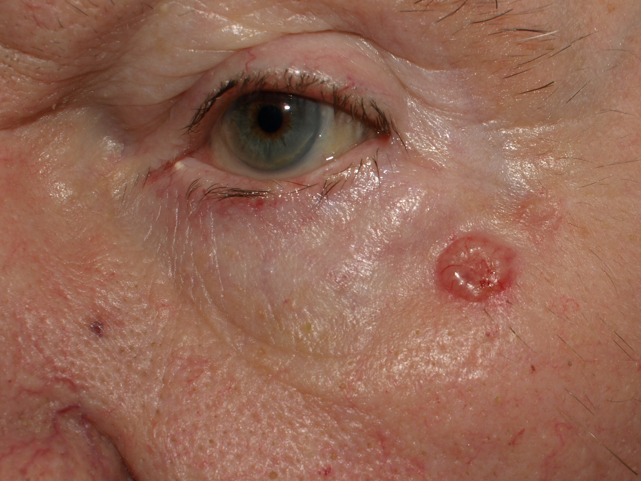 Clinical Photos of Merkel Cell Carcinoma | Merkel Cell ...