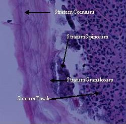 Stromectol est il sans ordonnance