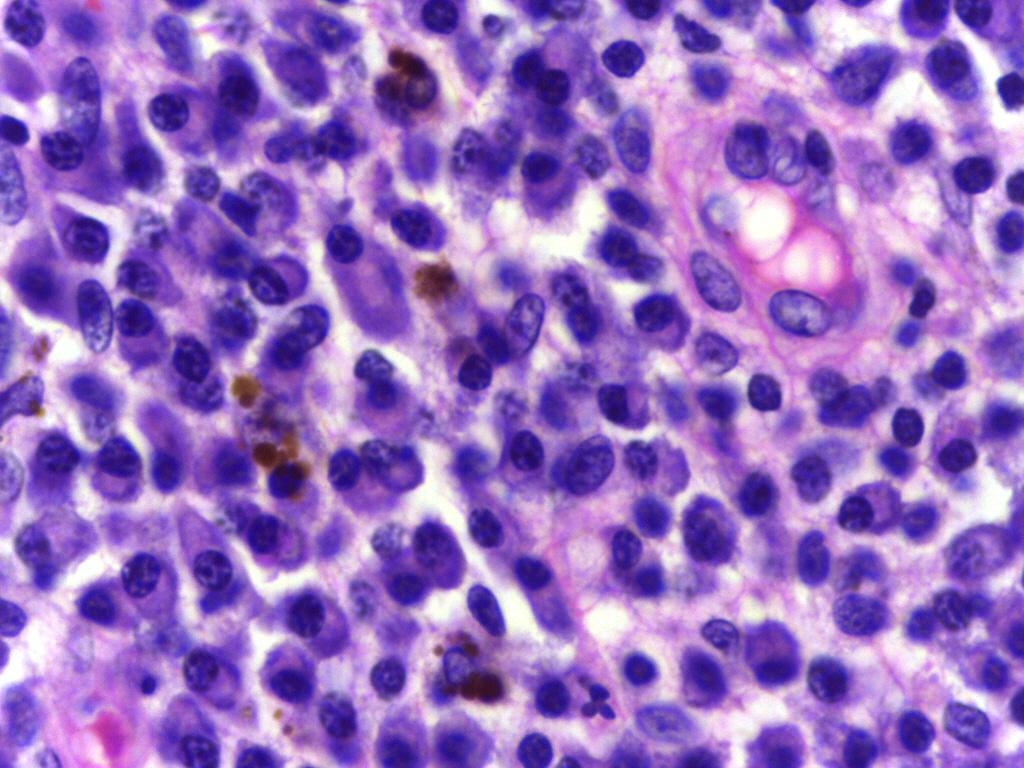 細胞 形質 1-7.形質細胞に核小体は?(中竹俊彦 2007)