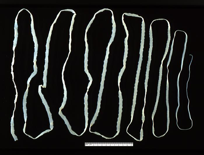 File:Taenia saginata adult 5260 lores.jpg-kimberley-o'brien-chicago