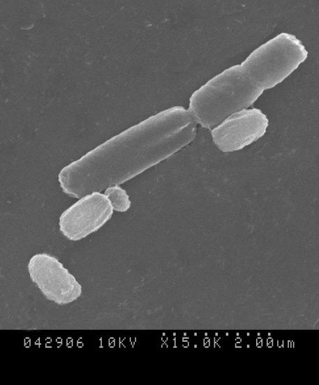 File:Bacillus subtilis R0179.jpg - Wikimedia Commons