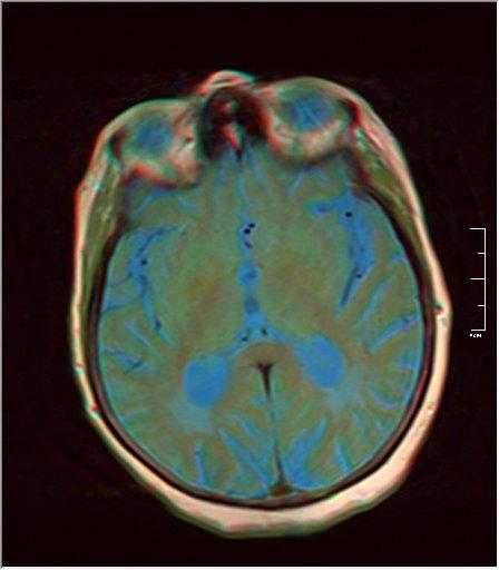 Brain MRI 0052 09.jpg