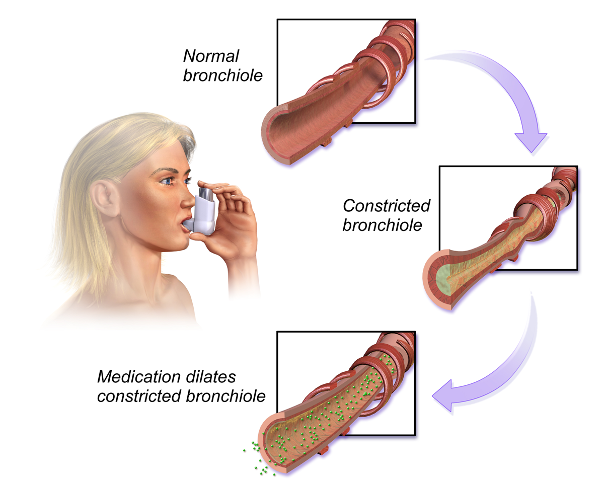 Bronchodilators