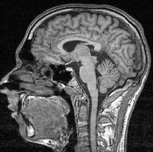 وسائل دراسة الدماغ