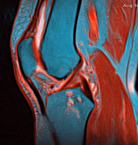 Knee MRI 113746 rgbcb