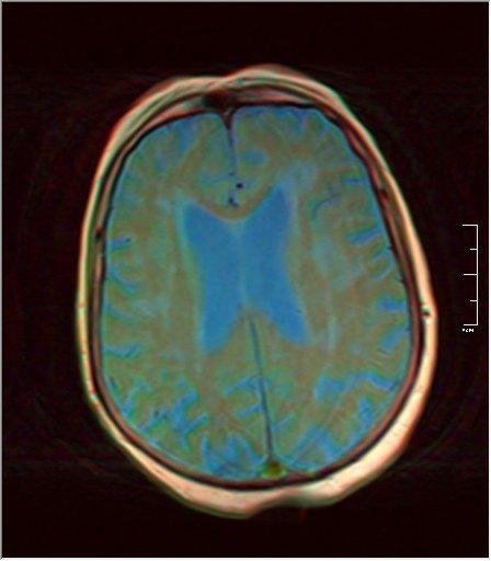 Brain MRI 0052 06.jpg