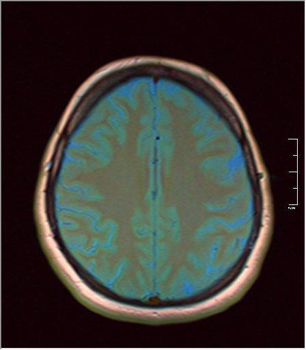 Brain MRI 05.jpg