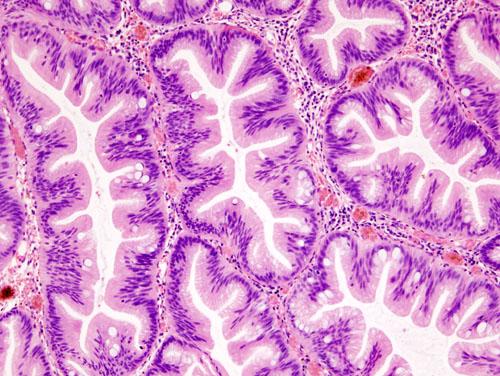 File:Colonic serrated adenoma (2) histopatholgy.jpg ...