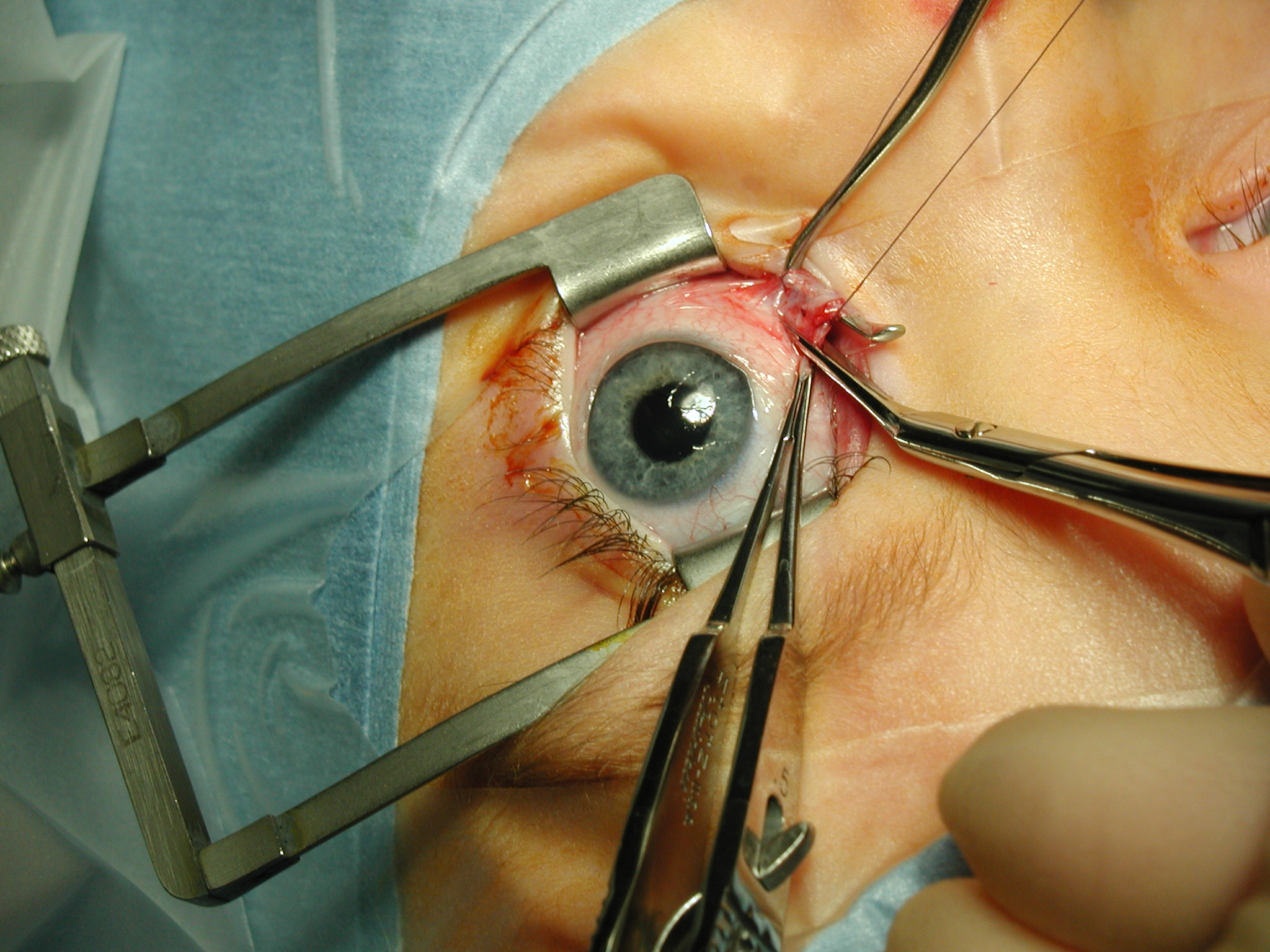 eye sugery