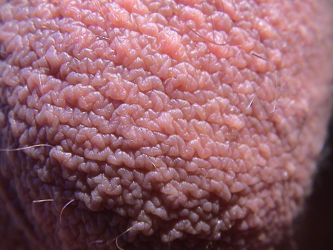 photo testicule homme