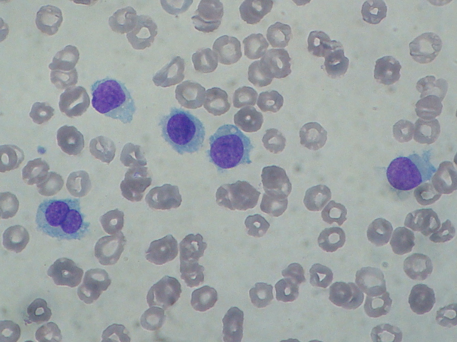 Hairy cell leukemia statistics