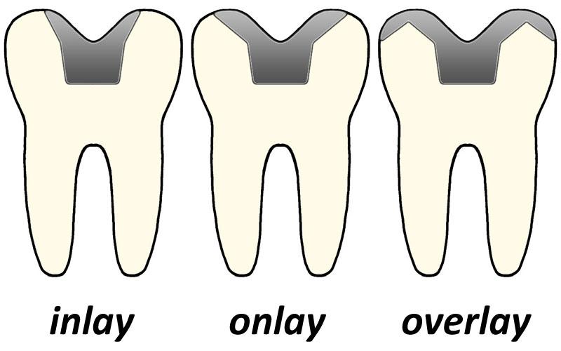 Inlays and onlays - Wikipedia