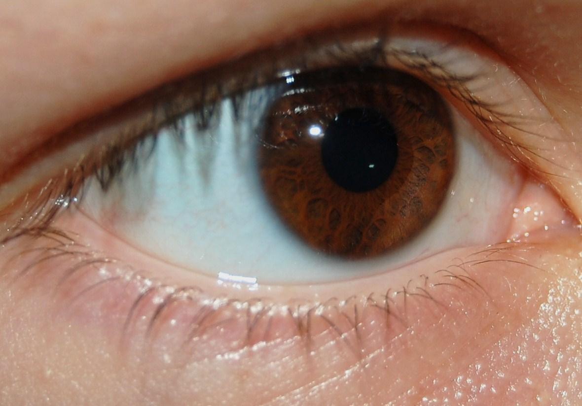 Gonf rg hos m nniskan wikipedia - Brun au yeux bleu ...