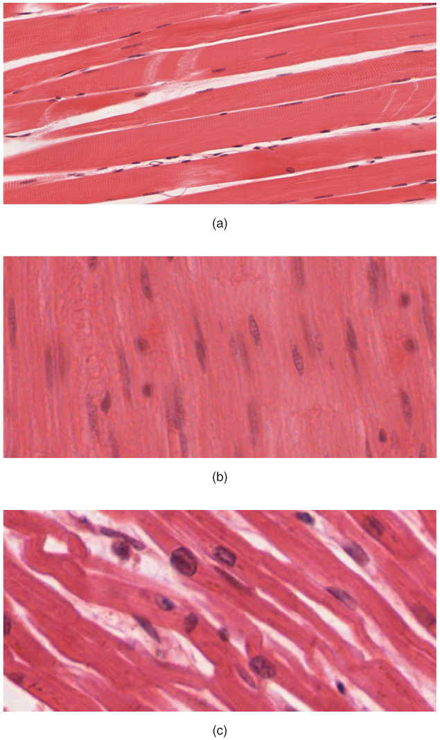 skeletal tissue This lesson describes how skeletal muscles are used for movement   skeletal  muscle organization: connective tissue and layers the sarcomere and.