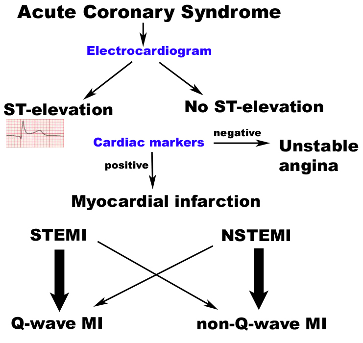 thesis myocardial infarction Examining cardiac rehabilitation: post-myocardial infarction the patient about myocardial infarction and its to increase myocardial oxygen.