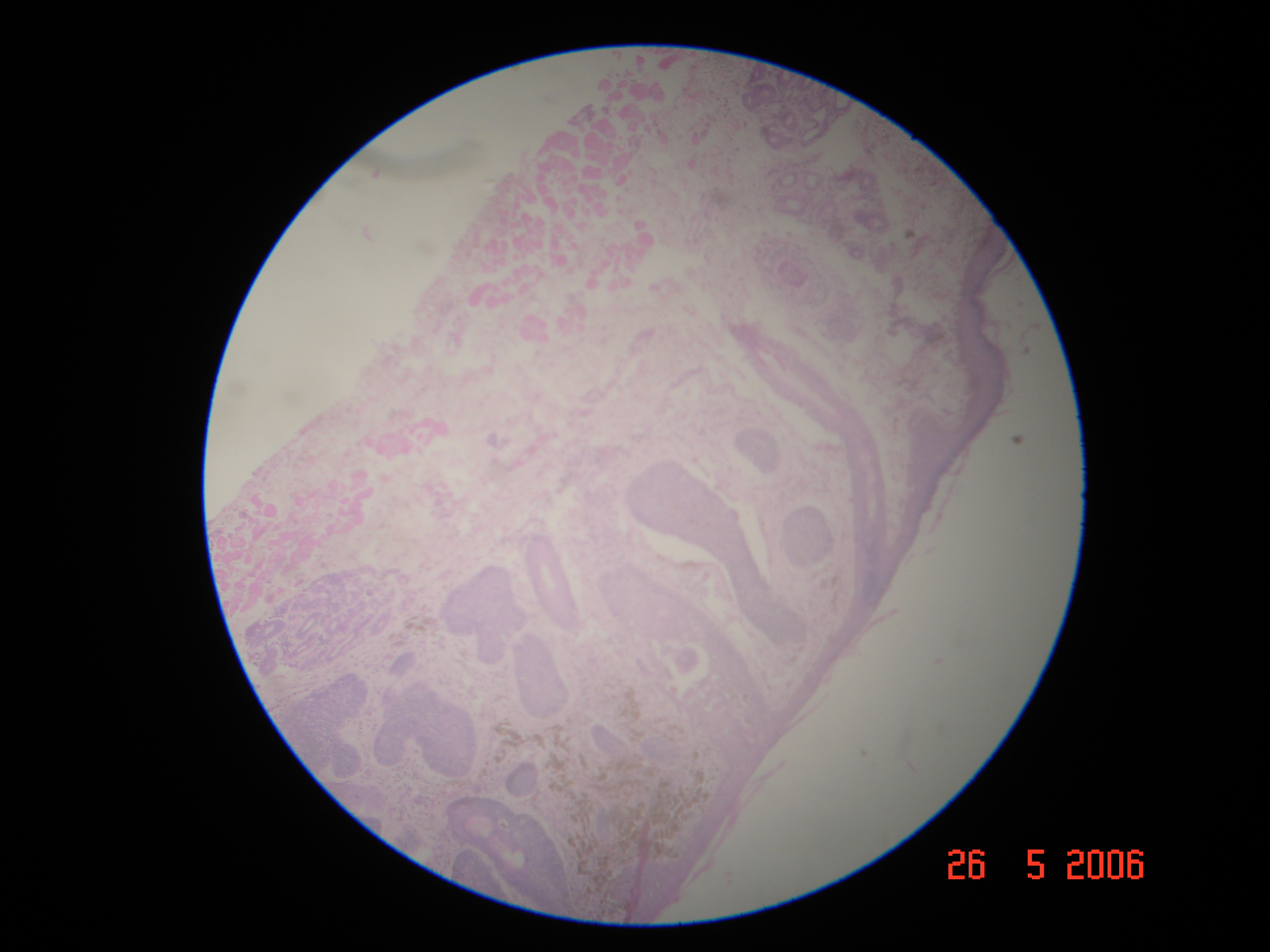 Basal Cell Carcinoma Natural Treatment Vitamin C