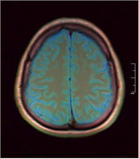 Brain MRI 0249 03.jpg