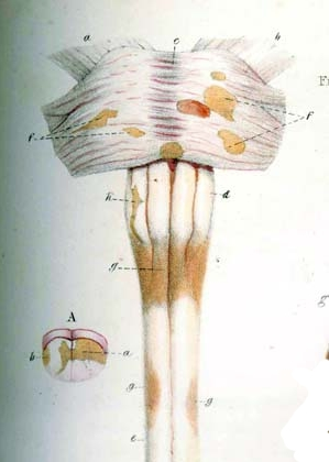 Detail of plate 4, figure 4 of Pathological An...