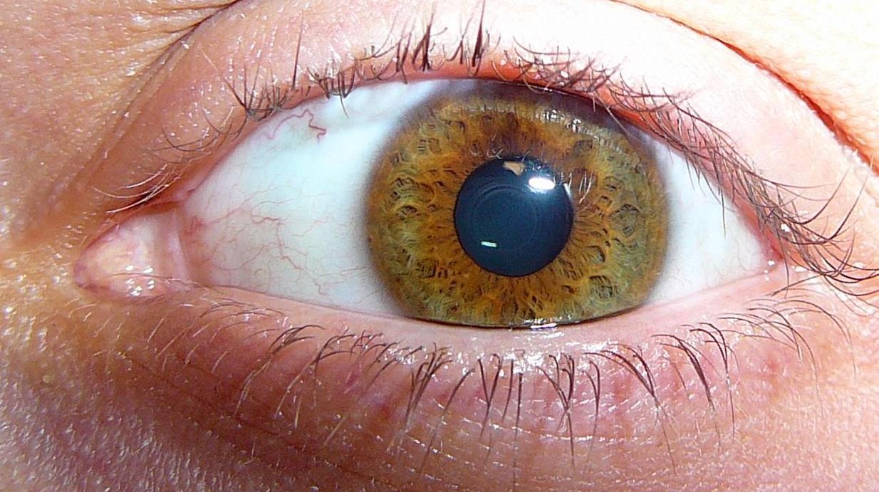 Cat Glaucoma Natural Treatment