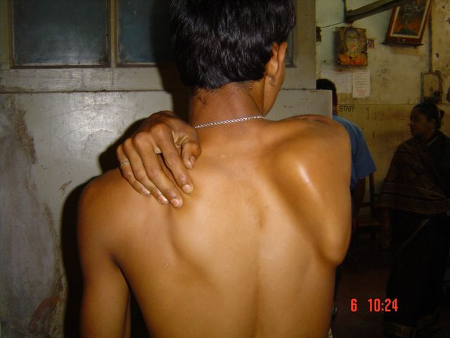 Scapula Winging in Long Thoracic Nerve Palsy