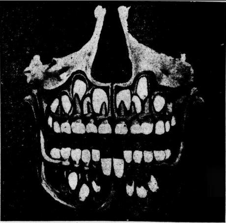 Image result for human skull x ray