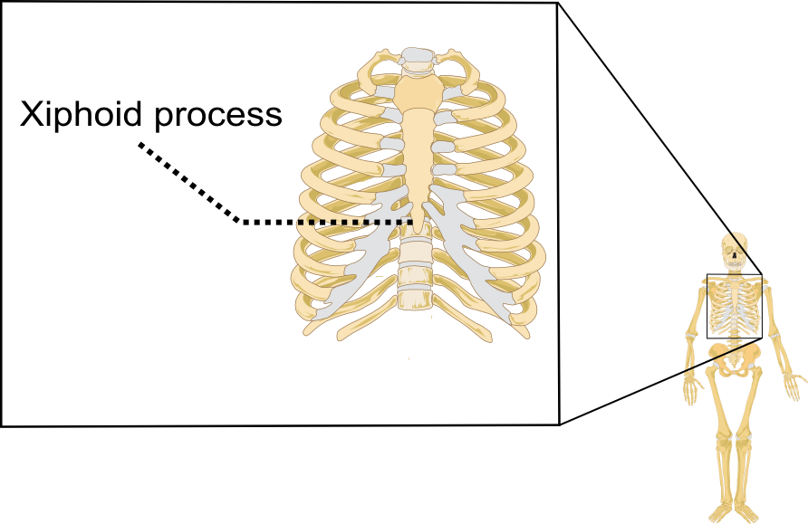 Filexiphoid Processg Wikipedia