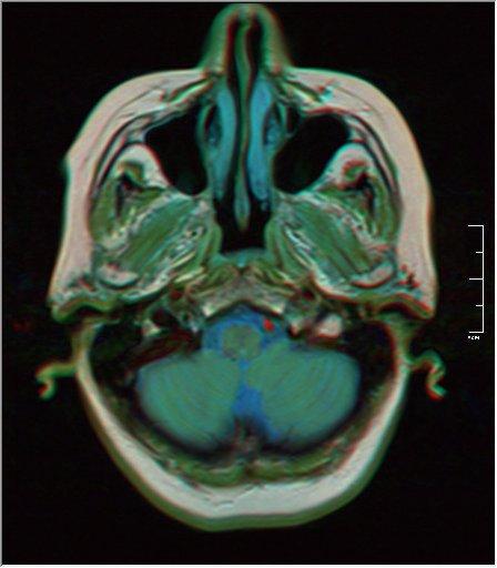 Brain MRI 0153 18.jpg