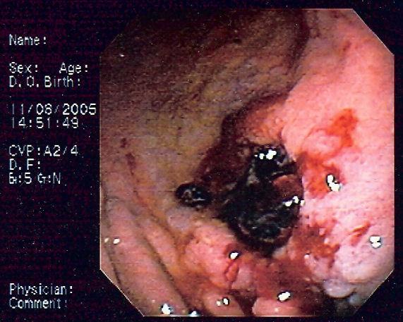 Gastric MALT lymphoma