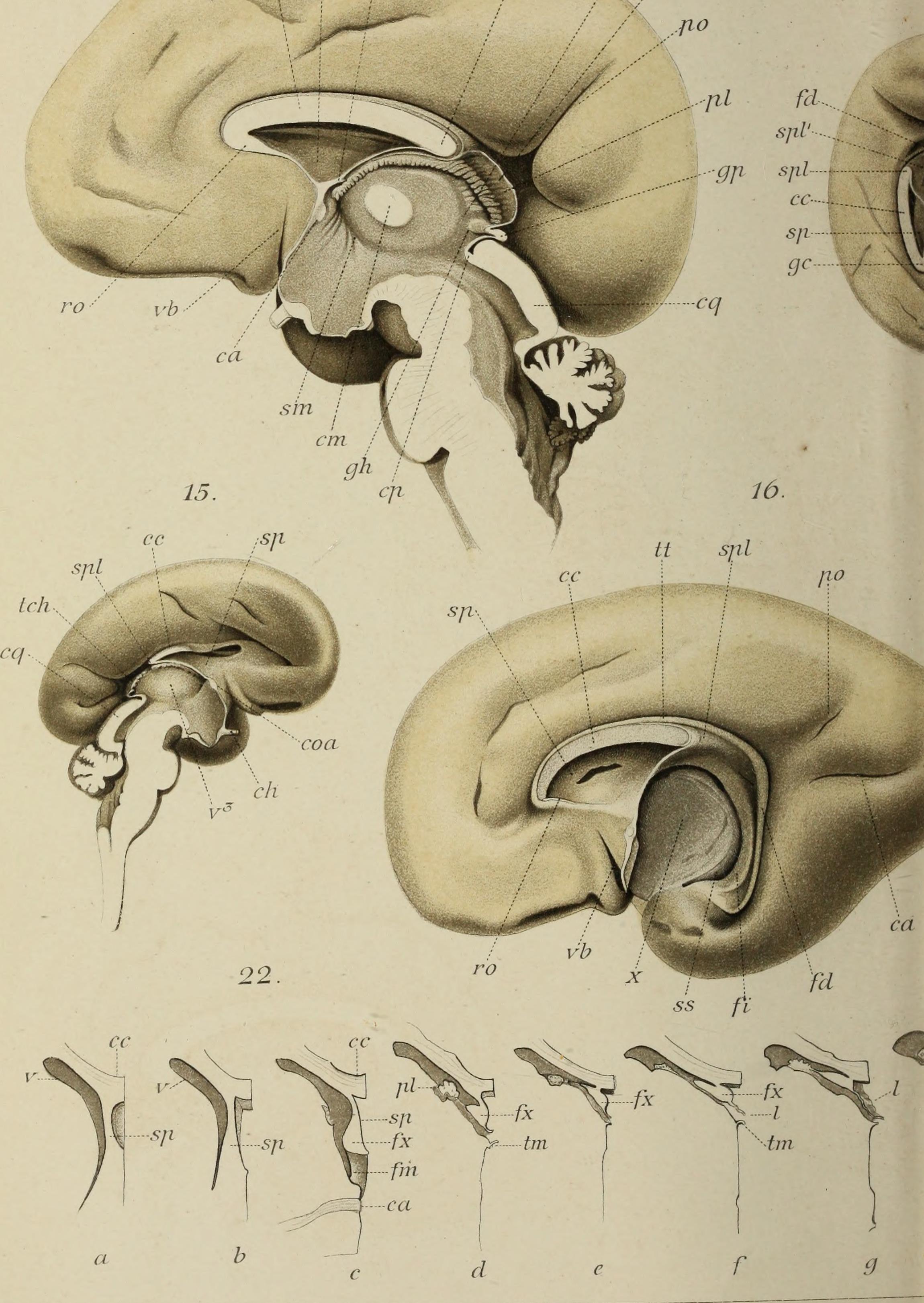 Niedlich Makroskopische Anatomie Der Typischen Langen Knochen ...