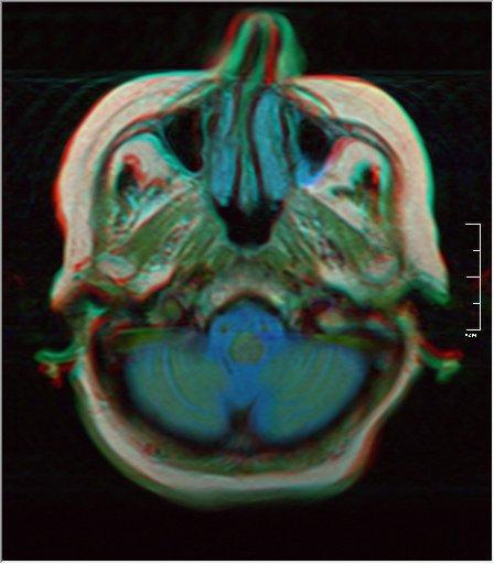 Brain MRI 0198 18.jpg