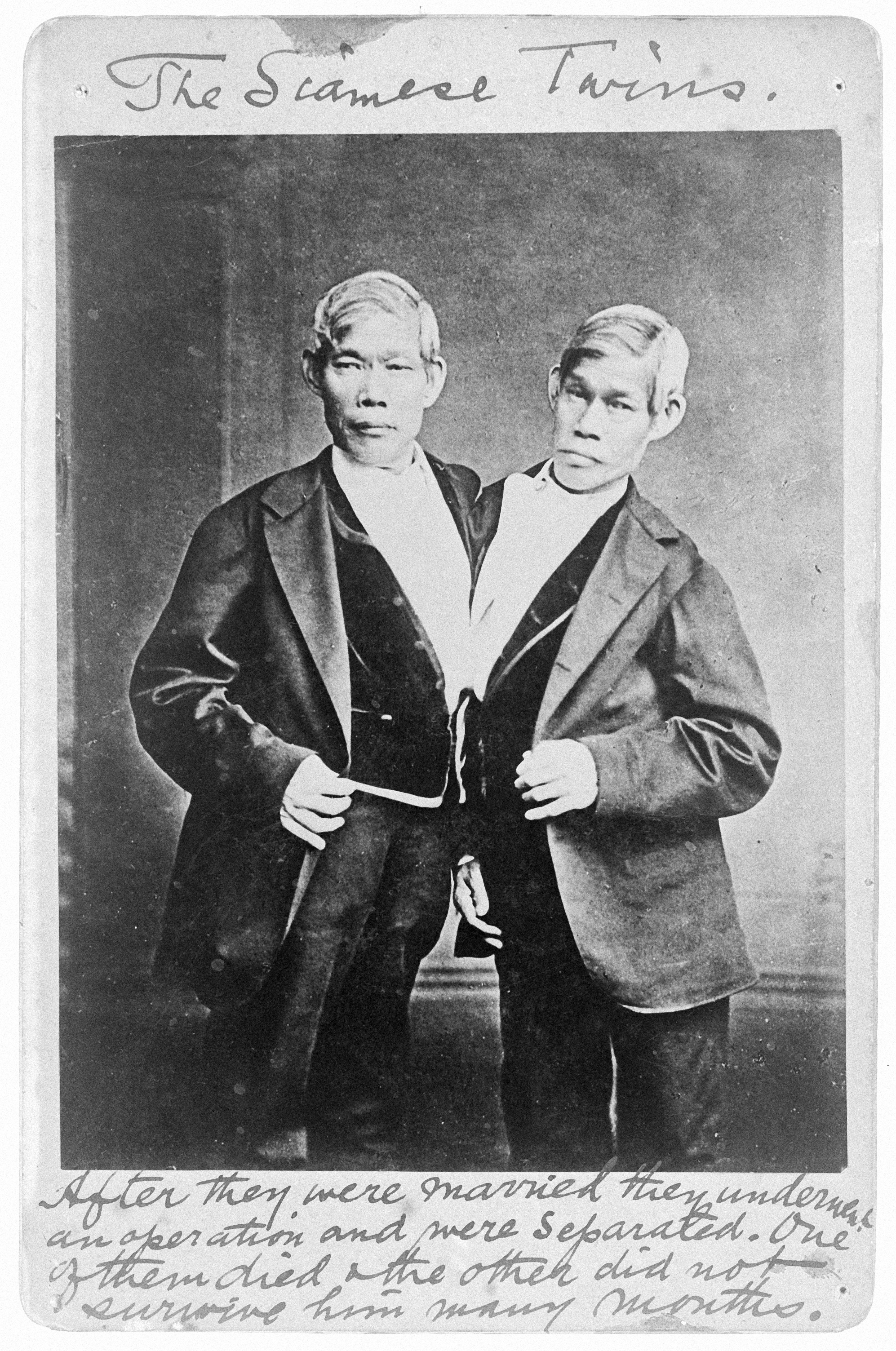 File:Chang and Eng 1811-1874. Wellcome L0005909.jpg