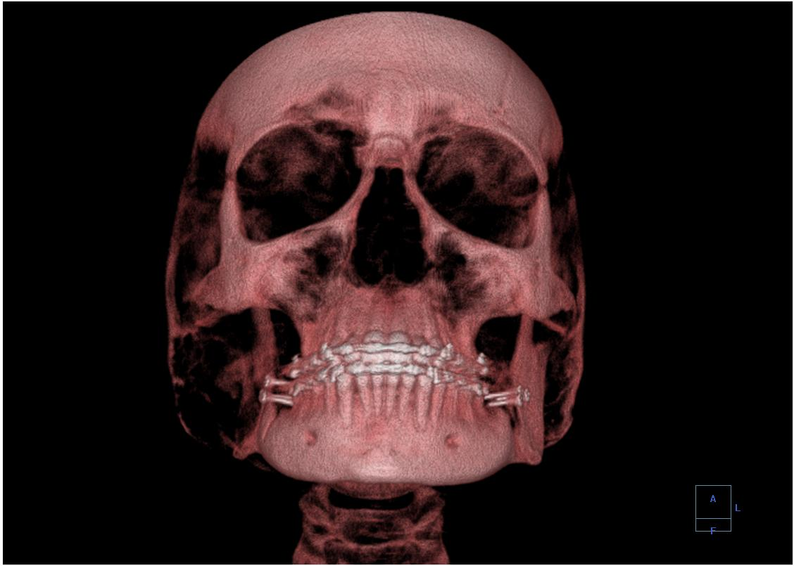Oral and maxillofacial radiology - Wikipedia