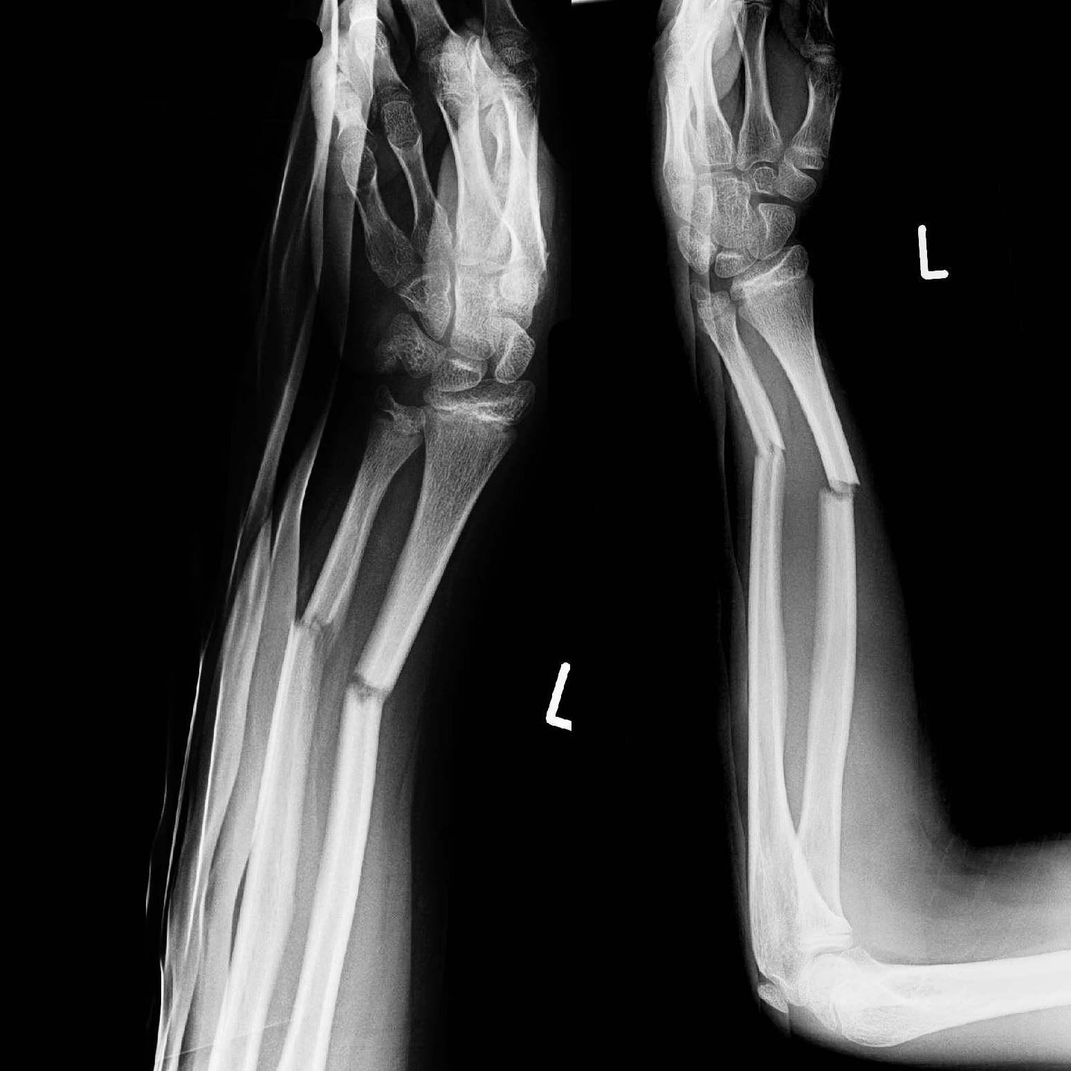 Dog Foot Bone Video