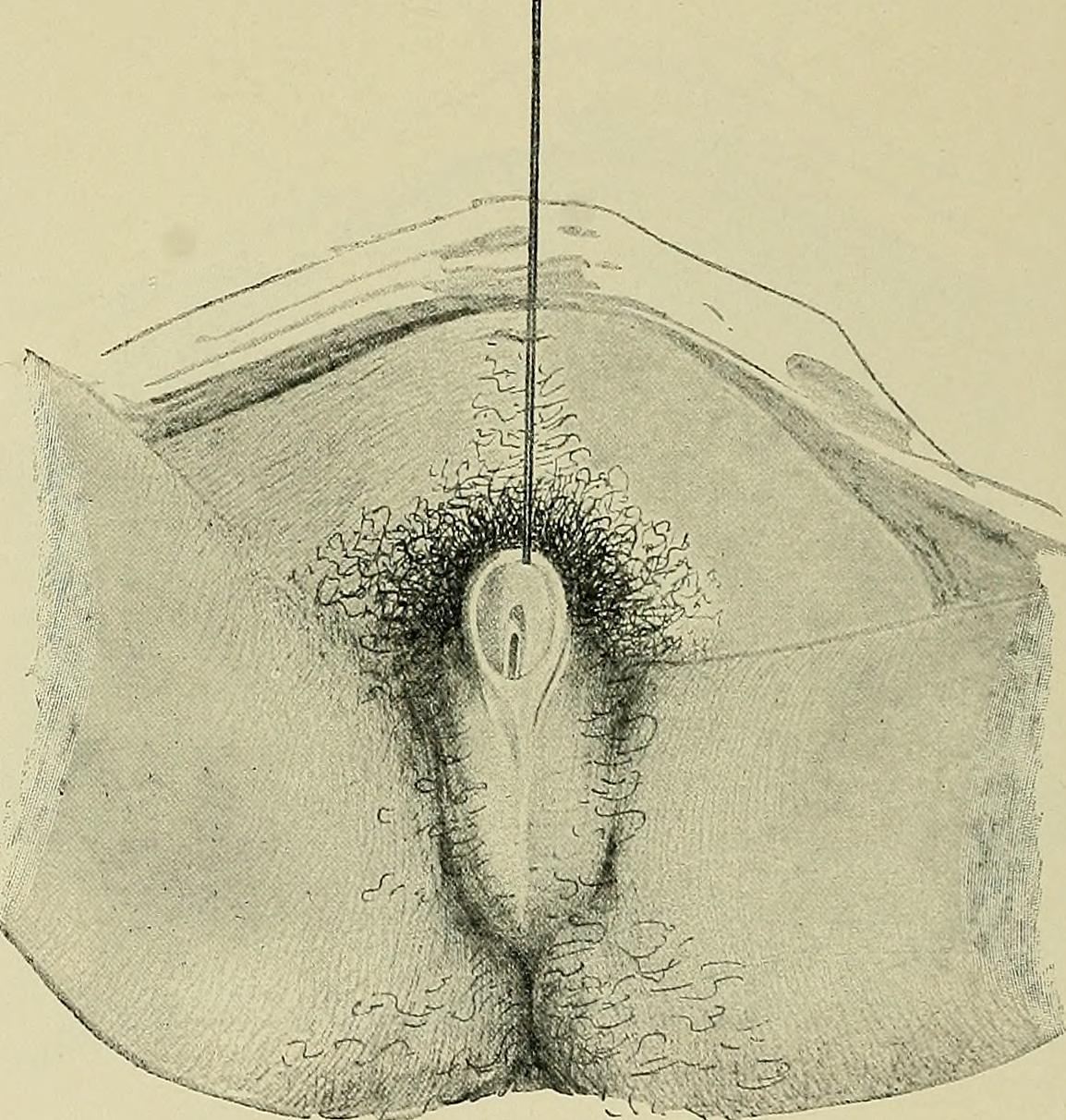 Description Hermaphroditismus beim Menschen (1908) (14783743245).jpg: https://commons.wikimedia.org/wiki/File:Hermaphroditismus_beim...