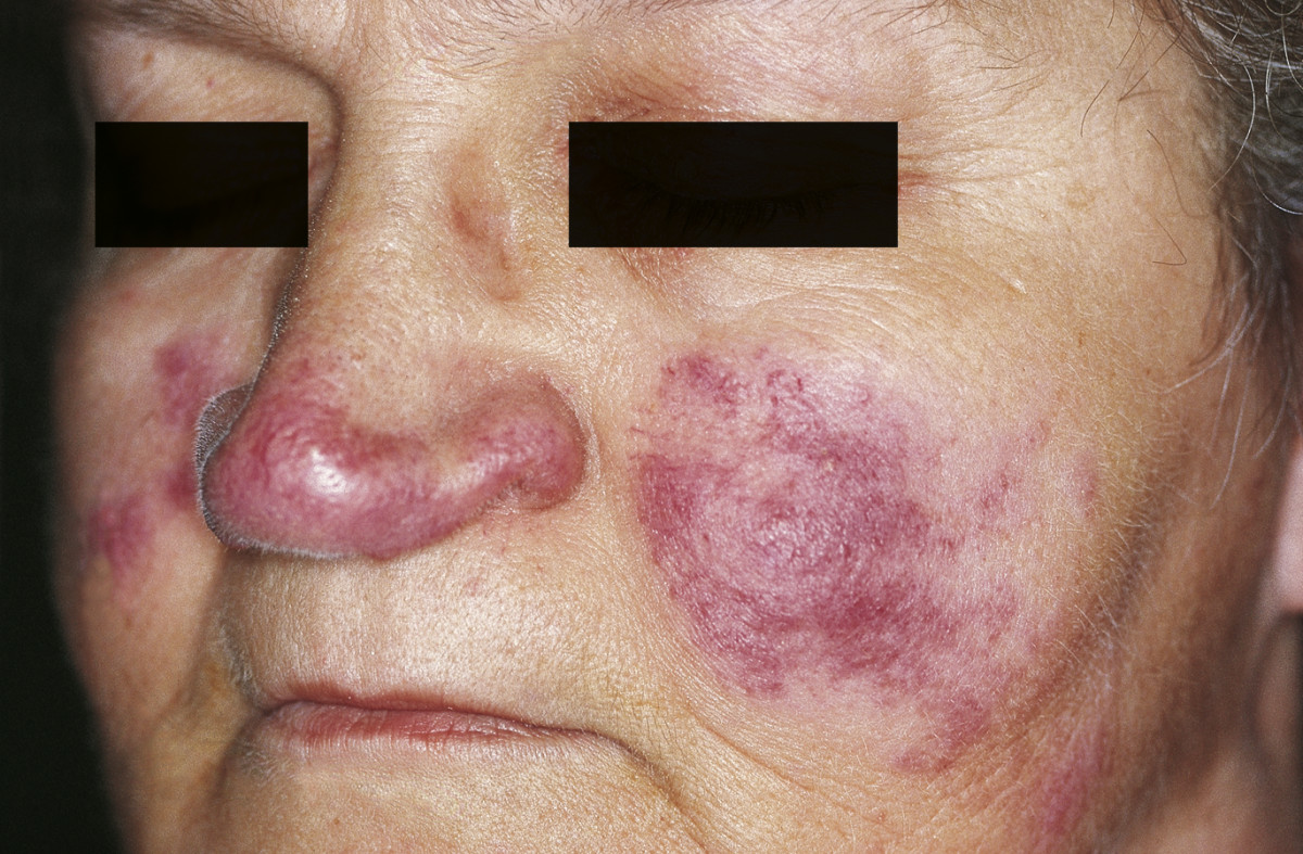 Systemic Lupus Erythematosus (SLE) Picture Lupus Rash