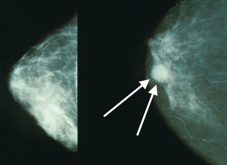 Breast Cancer Wikipedia