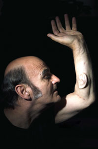 Stelarc Extra Ear Ear on Arm.jpg