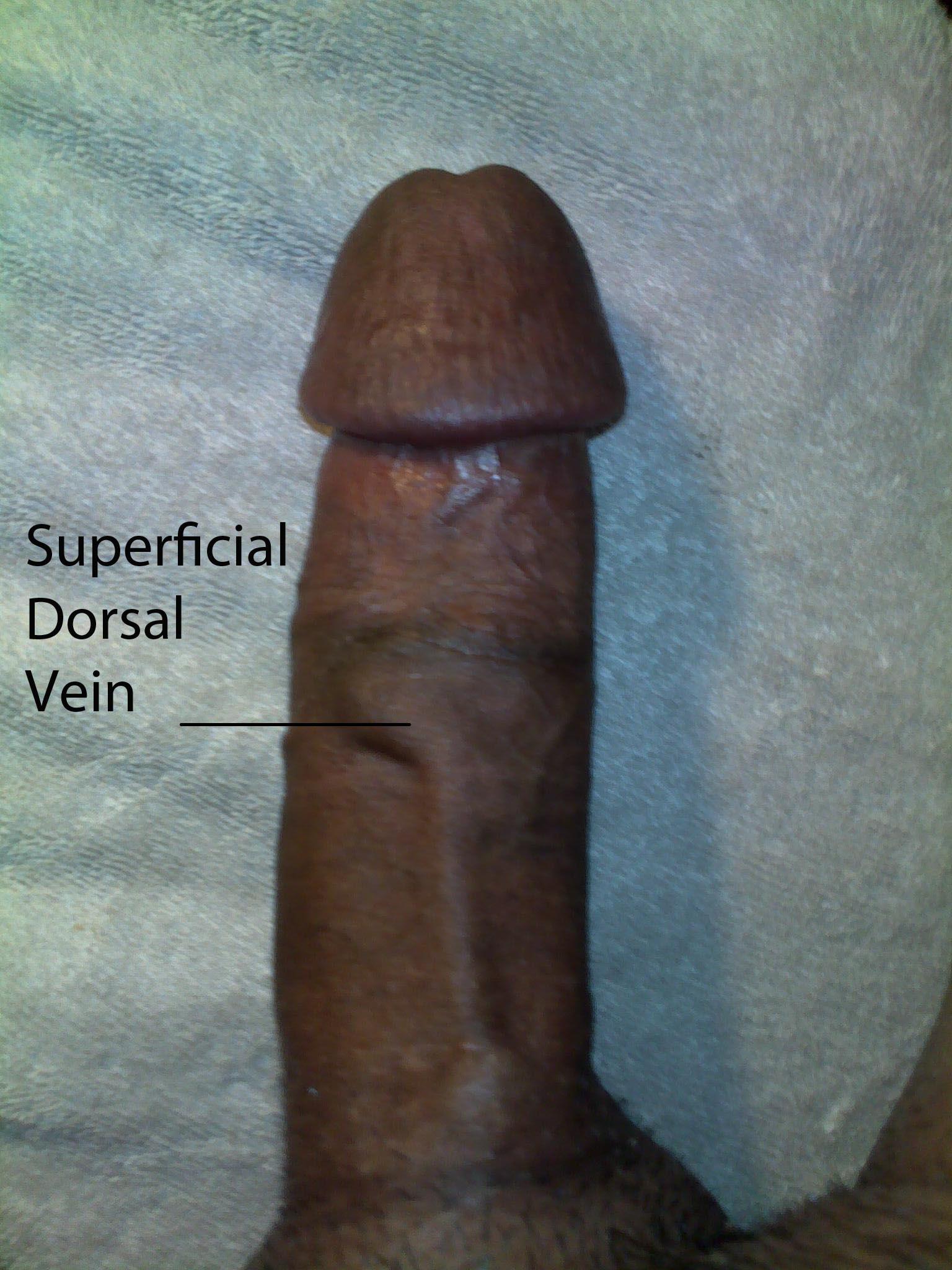 deep dorsal vein of penis jpg 1080x810
