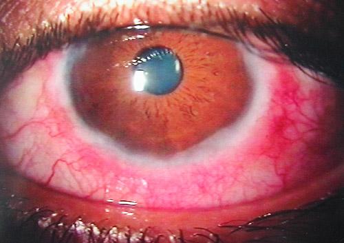 Vernal keratoconjunctivitis - Wikipedia of Icd 10 for acute bacterial conjunctivitis