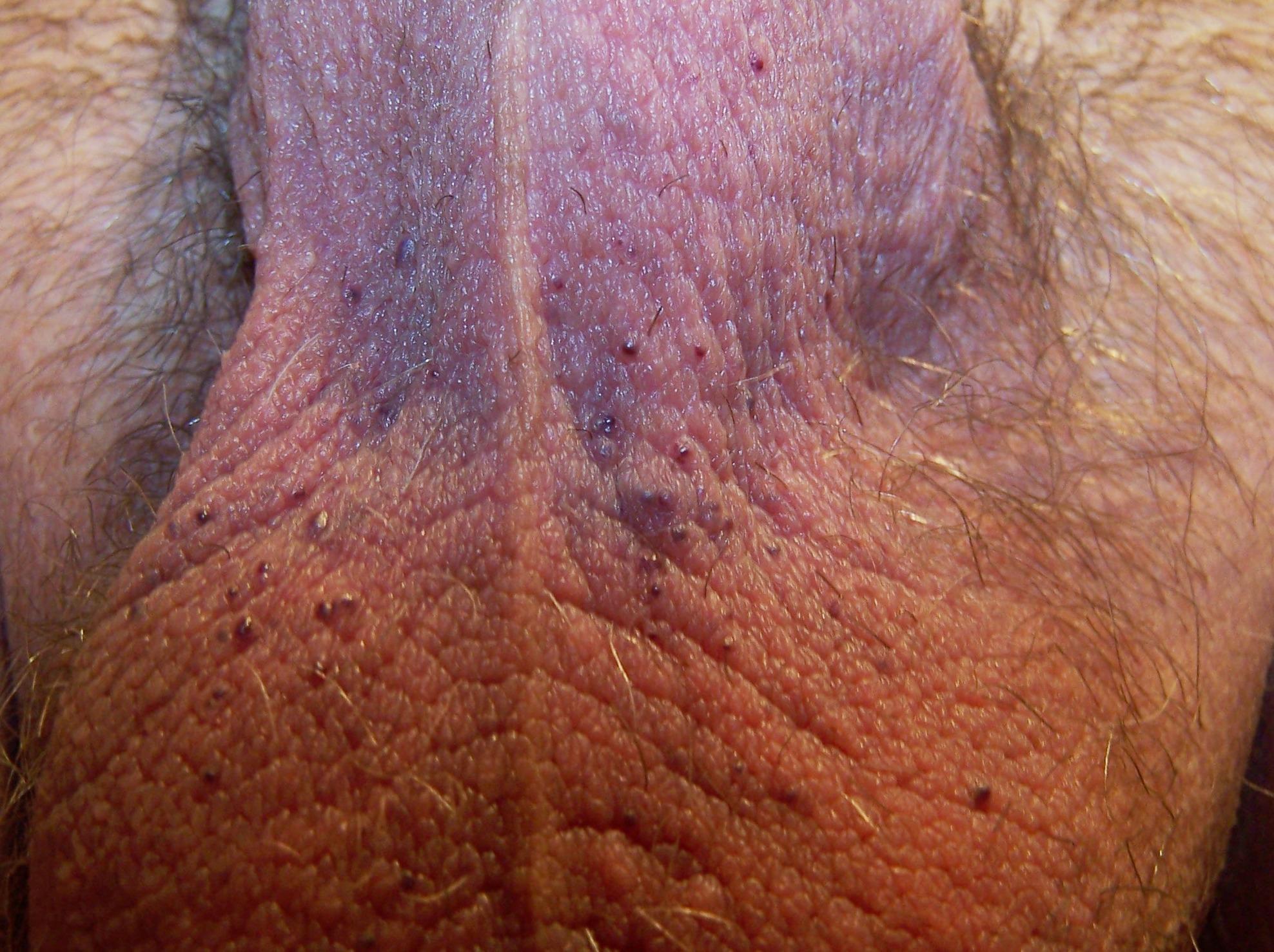 angiokeratoma scrotum