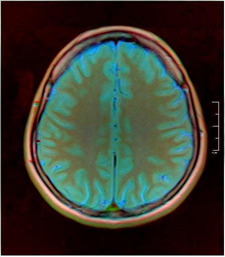 Color Brain MRI 0284 06.jpg