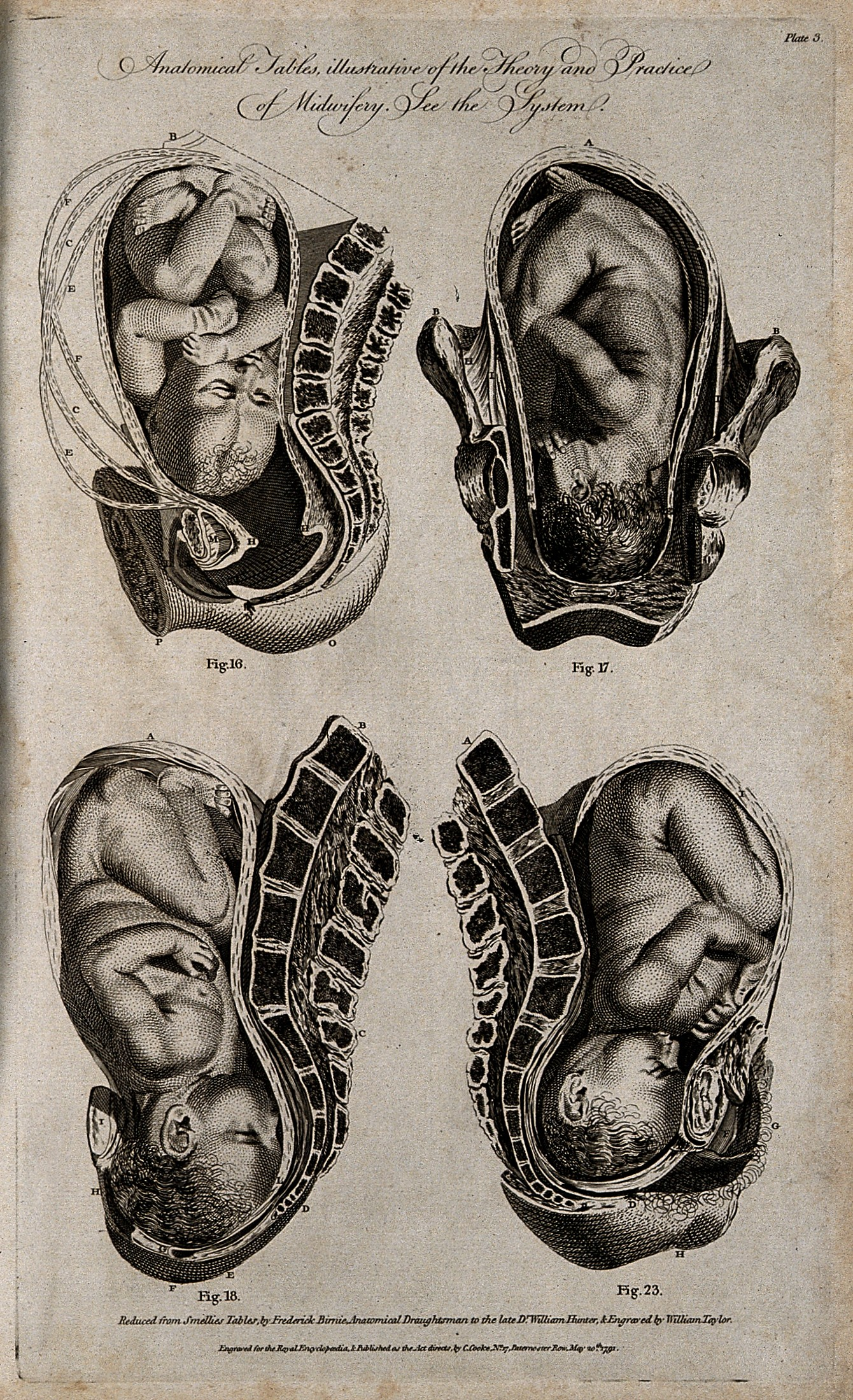 File:Four diagrams of babies in the womb. Engraving by W ...